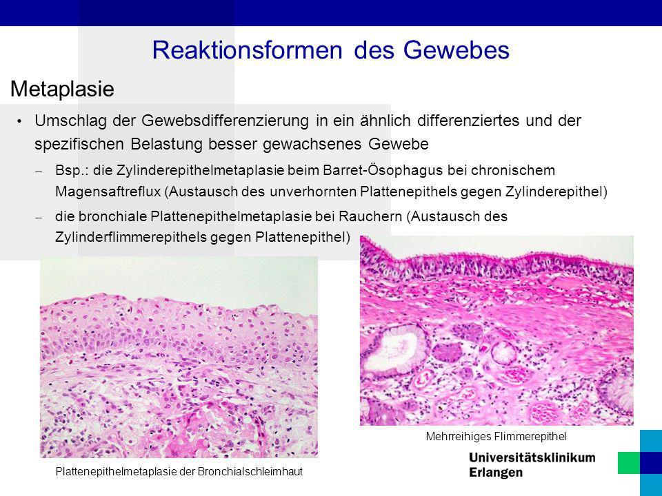 Metaplasie Umschlag der Gewebsdifferenzierung in ein ähnlich differenziertes und der spezifischen Belastung besser gewachsenes Gewebe  Bsp.: die Zyli