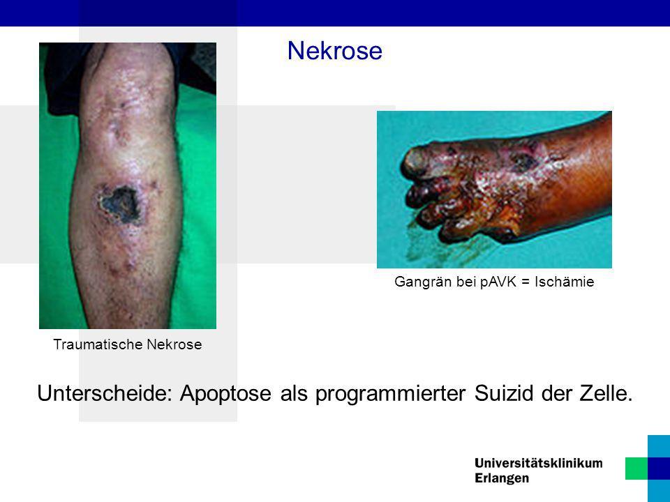 Traumatische Nekrose Gangrän bei pAVK = Ischämie Unterscheide: Apoptose als programmierter Suizid der Zelle. Nekrose