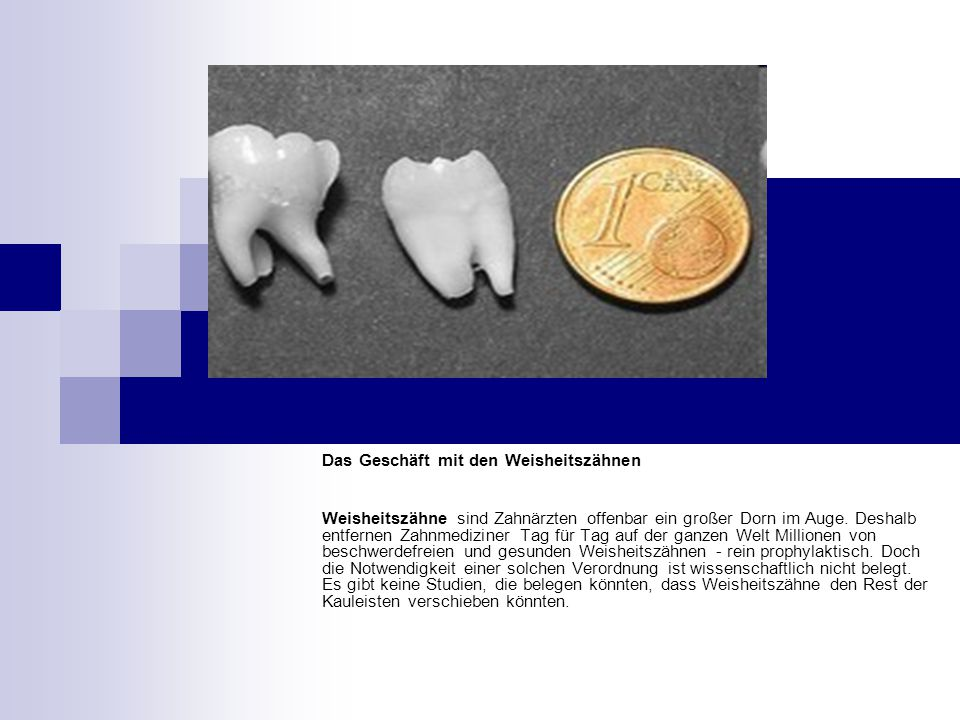 Das Geschäft mit den Weisheitszähnen Weisheitszähne sind Zahnärzten offenbar ein großer Dorn im Auge.