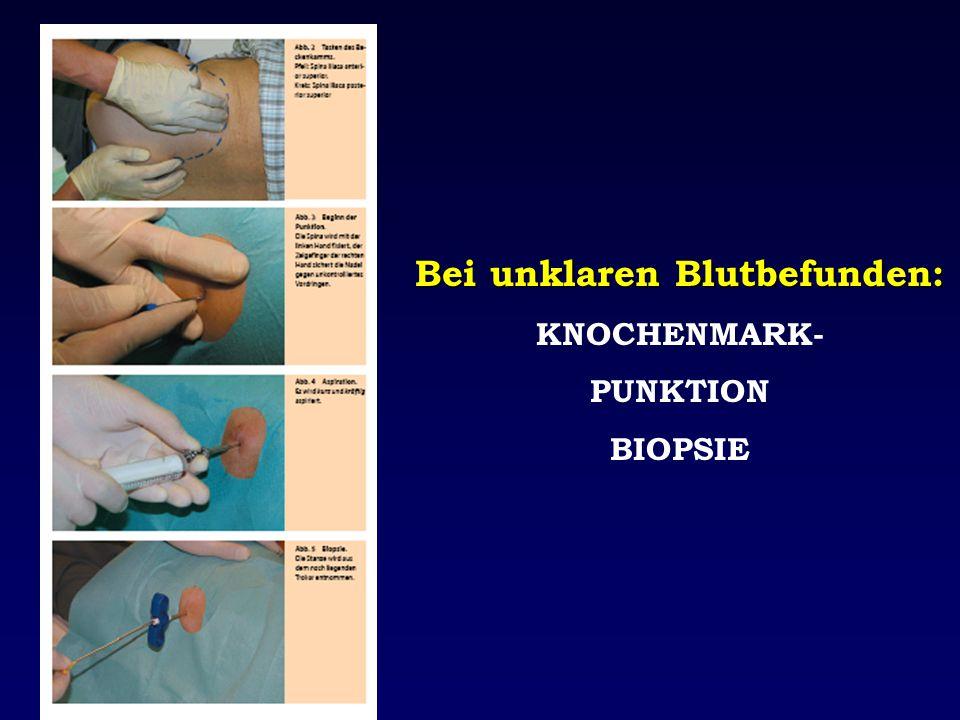 Bei unklaren Blutbefunden: KNOCHENMARK- PUNKTION BIOPSIE
