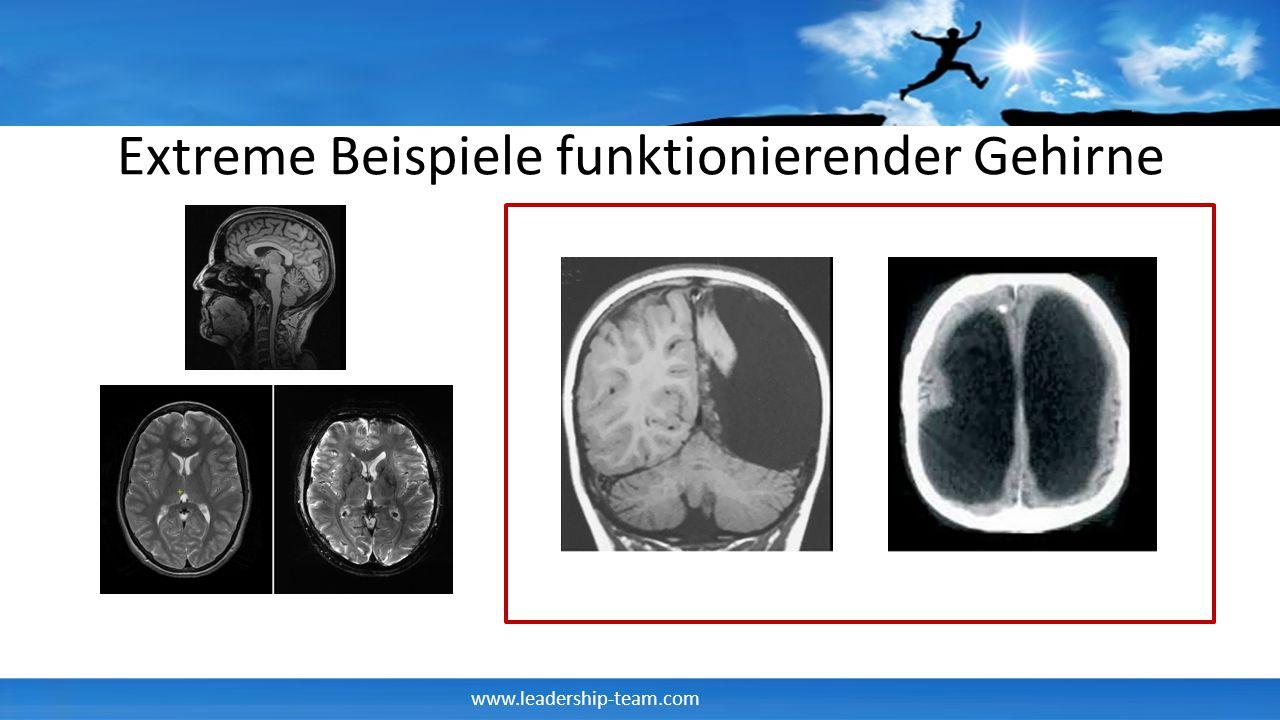 www.leadership-team.com Extreme Beispiele funktionierender Gehirne