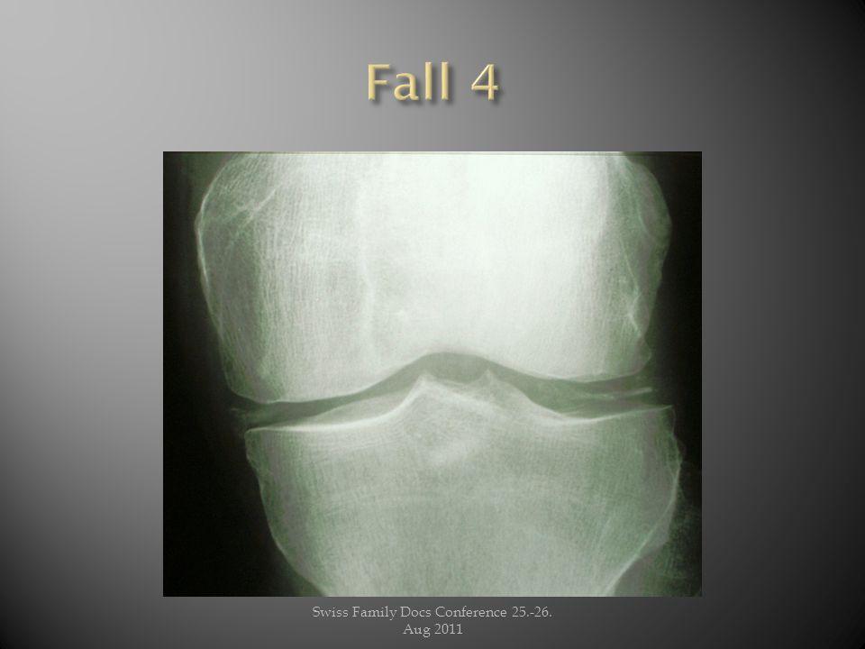 Juli 2011 : linkes Knie schmerzhaft geschwollen Klinische Diagnose: Aktivierte Gonarthrose und oder Pseudogichtschub (Chondocalcinose) Punktion: 30 ml leicht trüber, deutlich fadenziehender Erguss: Instillation von Diprophos.
