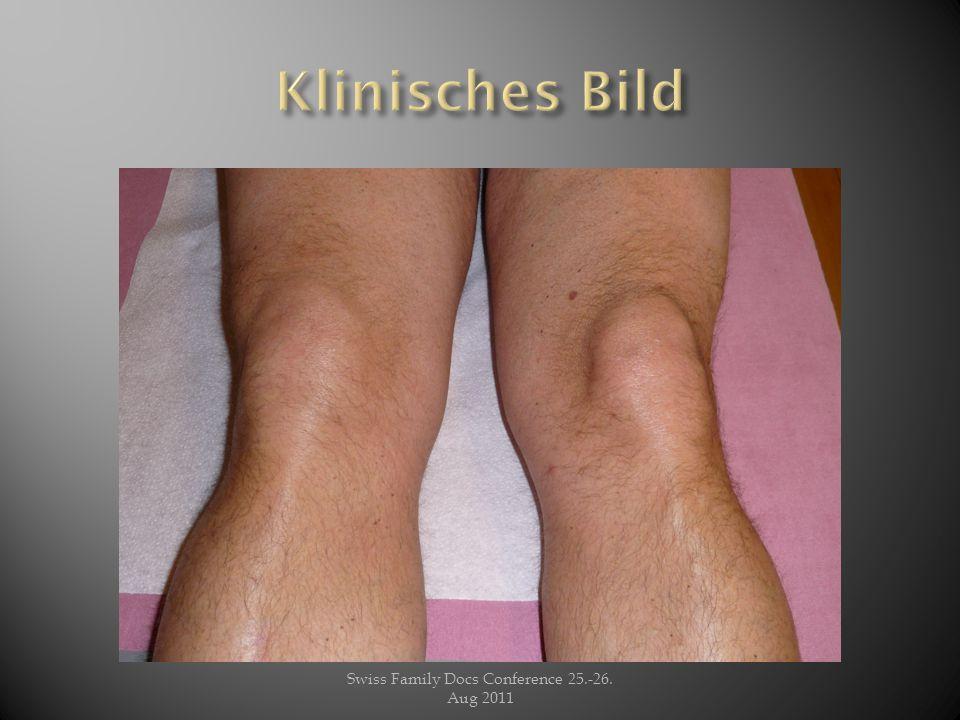 Klinik: Das rechte Knie ist geschwollen, geschätzte Ergussmenge ca 40- 60 ml, das Knie ist leicht überwärmt.