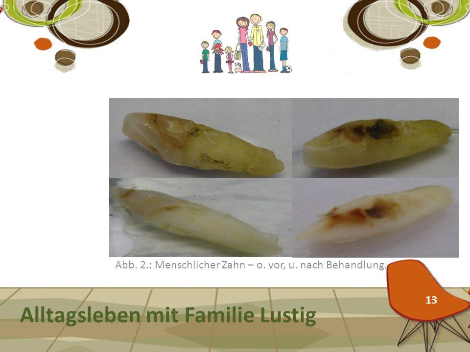 Zähne mit Zitronensäure bleichen? Alltagsleben mit Familie Lustig Abb. 2.: Menschlicher Zahn – o. vor, u. nach Behandlung. 13