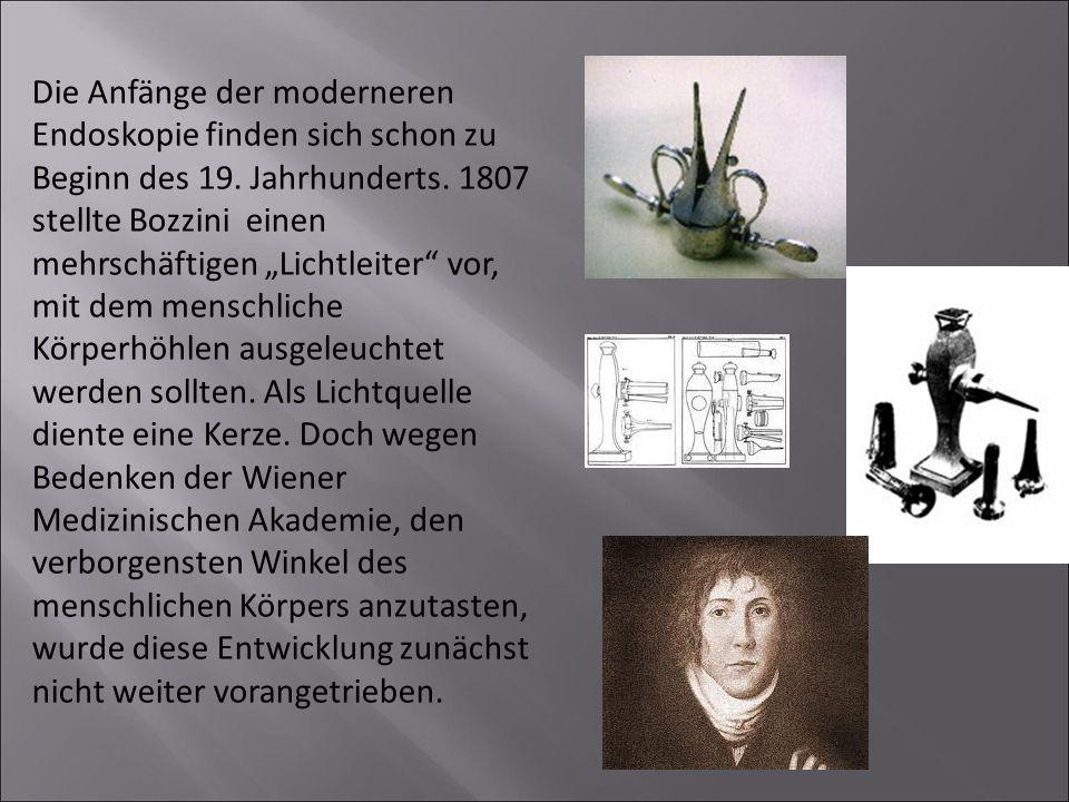 """Die Anfänge der moderneren Endoskopie finden sich schon zu Beginn des 19. Jahrhunderts. 1807 stellte Bozzini einen mehrschäftigen """"Lichtleiter"""" vor, m"""