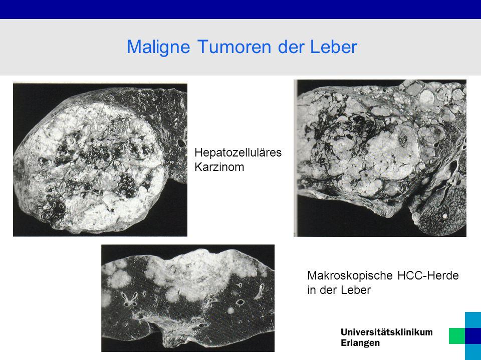 Hepatozelluläres Karzinom Makroskopische HCC-Herde in der Leber Maligne Tumoren der Leber
