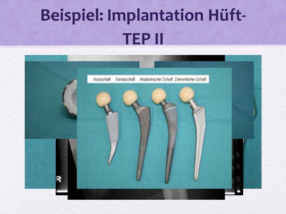 Beispiel: Implantation Hüft- TEP II
