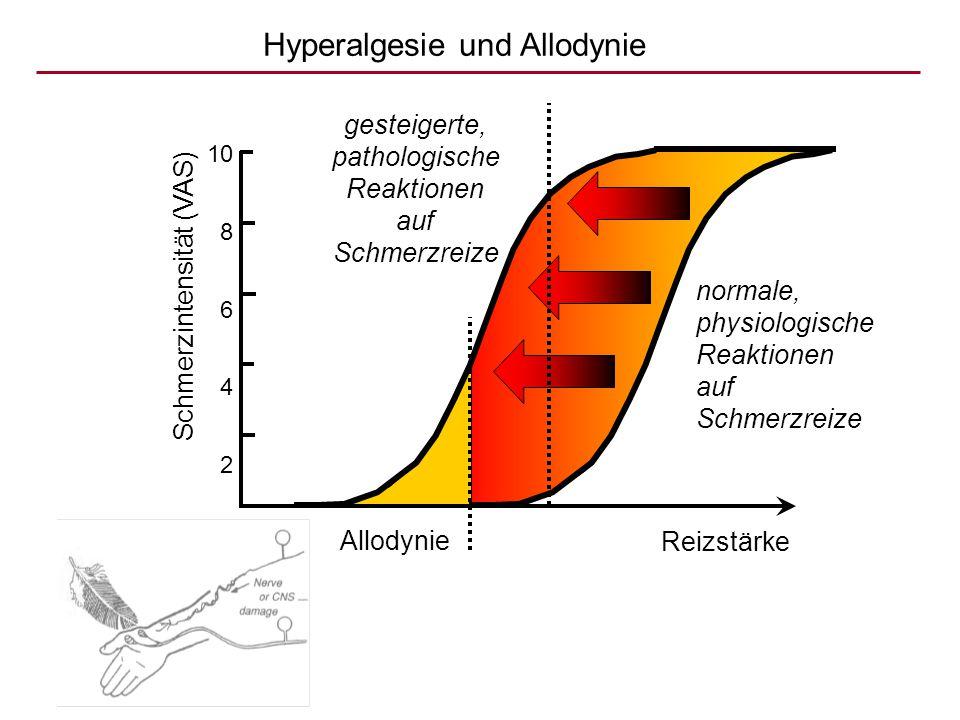 Hyperalgesie und Allodynie Schmerzintensität (VAS) 10 8 6 4 2 0 Reizstärke normale, physiologische Reaktionen auf Schmerzreize gesteigerte, pathologis