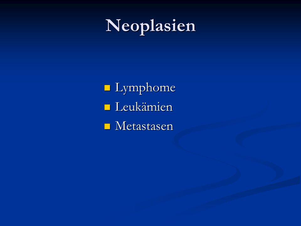 Neoplasien Lymphome Lymphome Leukämien Leukämien Metastasen Metastasen