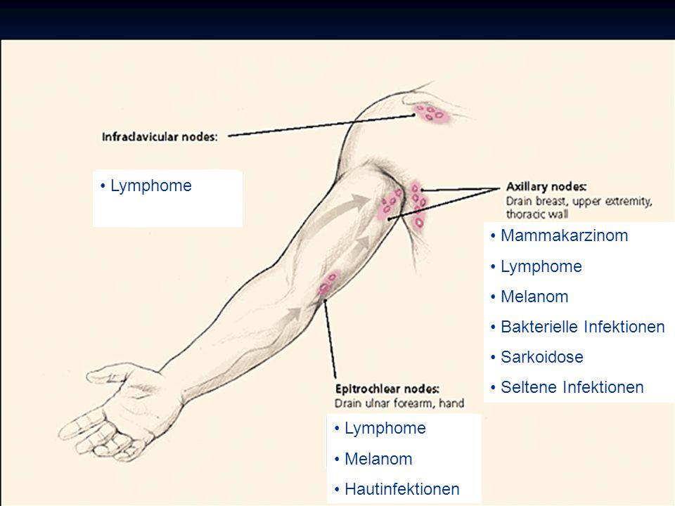 Mammakarzinom Lymphome Melanom Bakterielle Infektionen Sarkoidose Seltene Infektionen Lymphome Melanom Hautinfektionen
