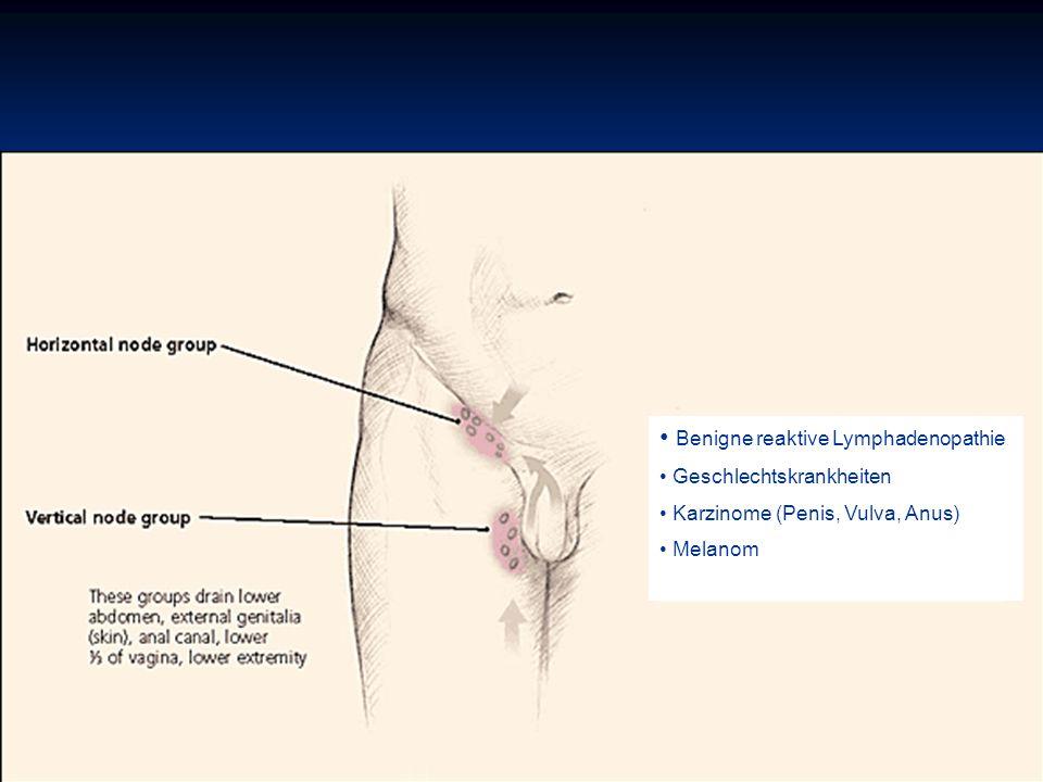 Benigne reaktive Lymphadenopathie Geschlechtskrankheiten Karzinome (Penis, Vulva, Anus) Melanom