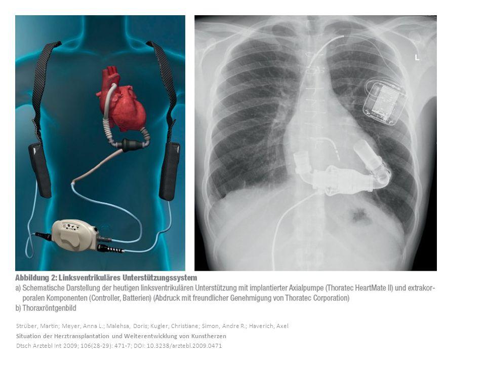 Strüber, Martin; Meyer, Anna L.; Malehsa, Doris; Kugler, Christiane; Simon, Andre R.; Haverich, Axel Situation der Herztransplantation und Weiterentwi