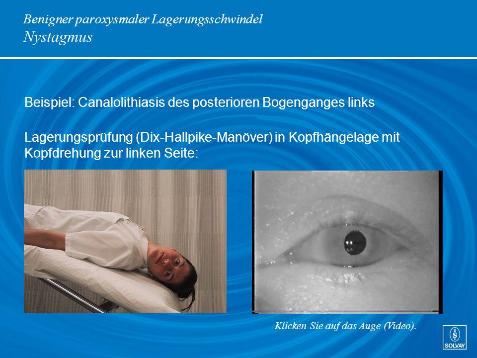 Benigner paroxysmaler Lagerungsschwindel Nystagmus Beispiel: Canalolithiasis des posterioren Bogenganges links Lagerungsprüfung (Dix-Hallpike-Manöver)