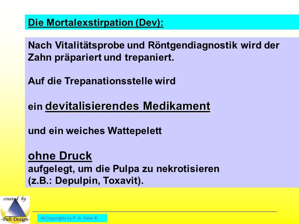 All Copyrights by P.-A. Oster ® Die Mortalexstirpation (Dev): Nach Vitalitätsprobe und Röntgendiagnostik wird der Zahn präpariert und trepaniert. Auf