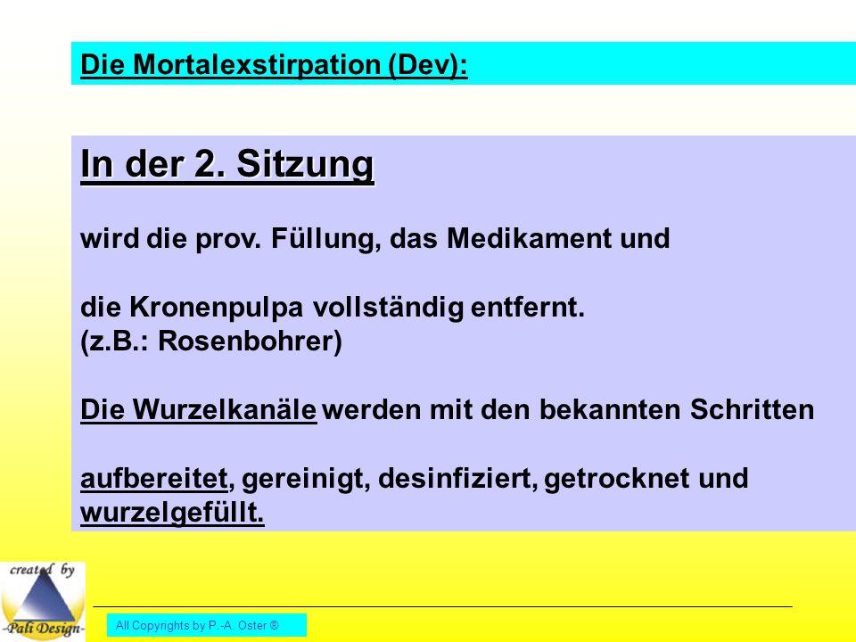 All Copyrights by P.-A. Oster ® Die Mortalexstirpation (Dev): In der 2. Sitzung wird die prov. Füllung, das Medikament und die Kronenpulpa vollständig