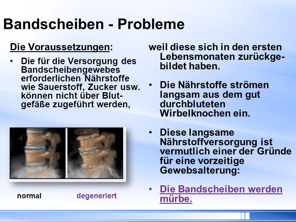 Operation …Risiken: Verletzung der Nervenwurzel Verletzungen im Bauch (z.B.