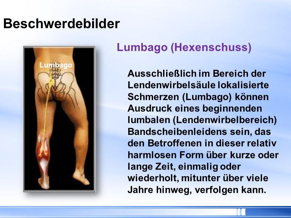 Beschwerdebilder Ischialgie (Ischias) Vom Rücken über das Gesäß in ein Bein ausstrahlende Ischiasschmerzen werden durch Berührung bzw.