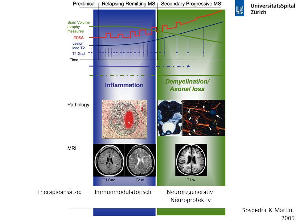 Behandlung der MS Interferon-  Glatirameracetat 1995, 1997 20042007 Natalizumab