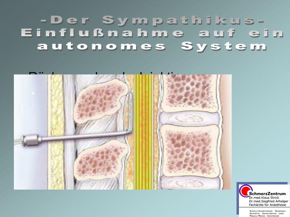 Rückenmarksnahe Injektionen –SPDA –Sacrale