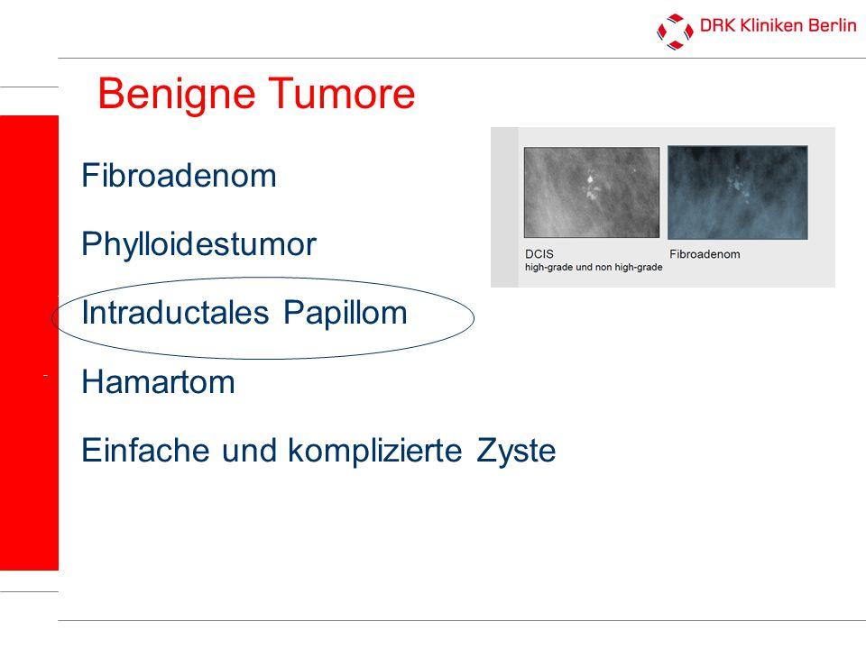 Benigne Tumore Fibroadenom Phylloidestumor Intraductales Papillom Hamartom Einfache und komplizierte Zyste