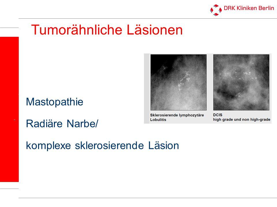 Läsionen mit unsicheren malignen Potential Flache epitheliale Atypie (FEA) Atypische duktale Hyperlasie (ADH) Lobuläre Neoplasie (LN) → Auftreten assoziert mit DCIS u./o.