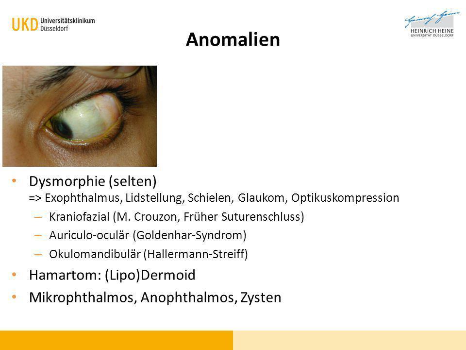 Anomalien Dysmorphie (selten) => Exophthalmus, Lidstellung, Schielen, Glaukom, Optikuskompression – Kraniofazial (M. Crouzon, Früher Suturenschluss) –