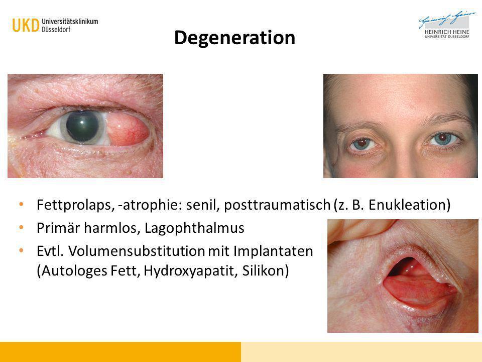 Fettprolaps, -atrophie: senil, posttraumatisch (z. B. Enukleation) Primär harmlos, Lagophthalmus Evtl. Volumensubstitution mit Implantaten (Autologes