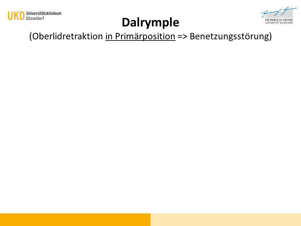 Dalrymple (Oberlidretraktion in Primärposition => Benetzungsstörung)