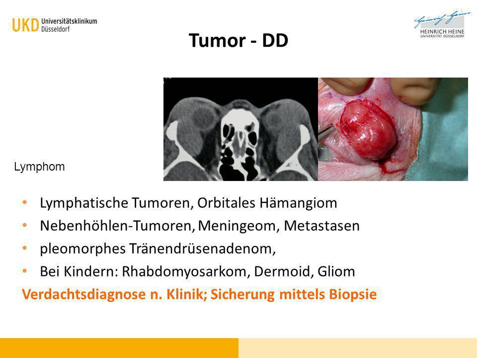 Tumor - DD Lymphatische Tumoren, Orbitales Hämangiom Nebenhöhlen-Tumoren, Meningeom, Metastasen pleomorphes Tränendrüsenadenom, Bei Kindern: Rhabdomyo