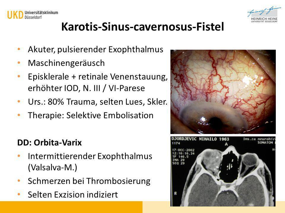 Karotis-Sinus-cavernosus-Fistel Akuter, pulsierender Exophthalmus Maschinengeräusch Episklerale + retinale Venenstauung, erhöhter IOD, N. III / VI-Par