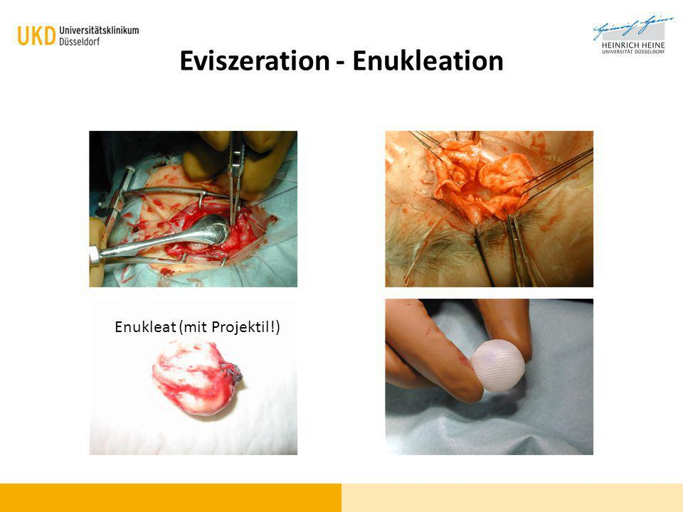 Eviszeration - Enukleation Enukleat (mit Projektil!)