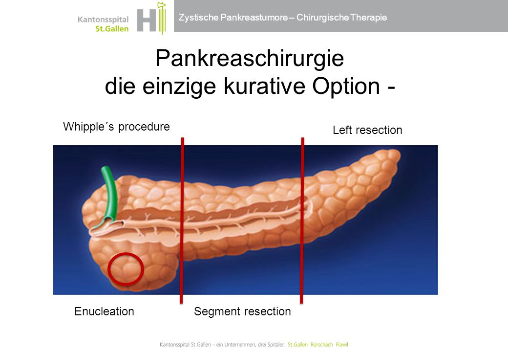 Zystische Pankreastumore – Chirurgische Therapie Pankreaschirurgie die einzige kurative Option - Whipple´s procedure Segment resection Left resection