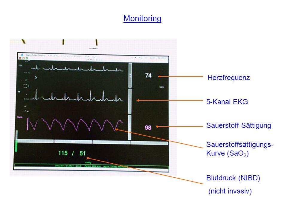 Monitoring 5-Kanal EKG Herzfrequenz Blutdruck (NIBD) (nicht invasiv) Sauerstoffsättigungs- Kurve (SaO 2 ) Sauerstoff-Sättigung