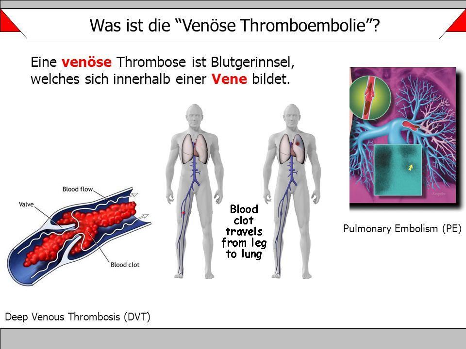 """Was ist die """"Venöse Thromboembolie""""? Deep Venous Thrombosis (DVT) Pulmonary Embolism (PE) Eine venöse Thrombose ist Blutgerinnsel, welches sich innerh"""