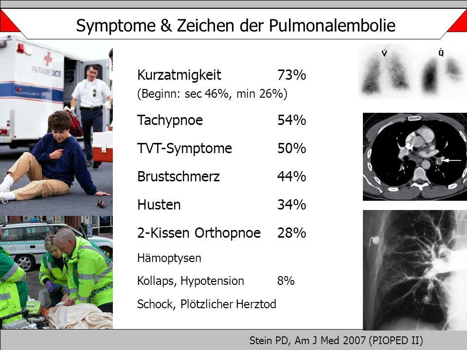 Symptome & Zeichen der Pulmonalembolie Kurzatmigkeit 73% (Beginn: sec 46%, min 26%) Tachypnoe 54% TVT-Symptome50% Brustschmerz 44% Husten 34% 2-Kissen