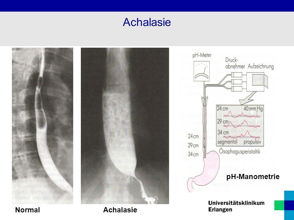 NormalAchalasie Achalasie pH-Manometrie
