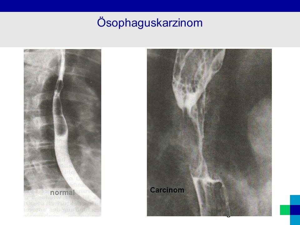 normal Carcinom Ösophaguskarzinom
