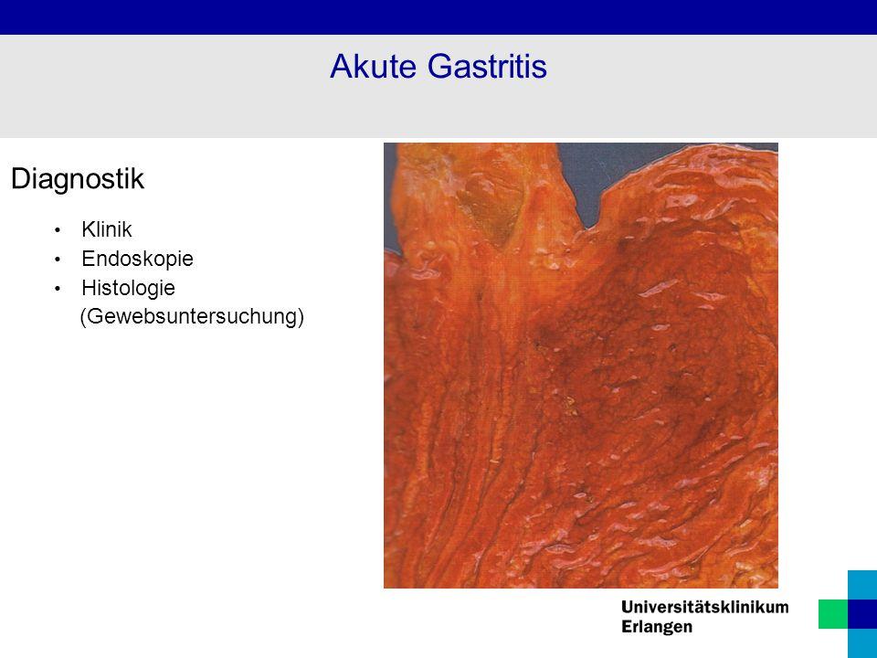 Diagnostik Klinik Endoskopie Histologie (Gewebsuntersuchung) Akute Gastritis