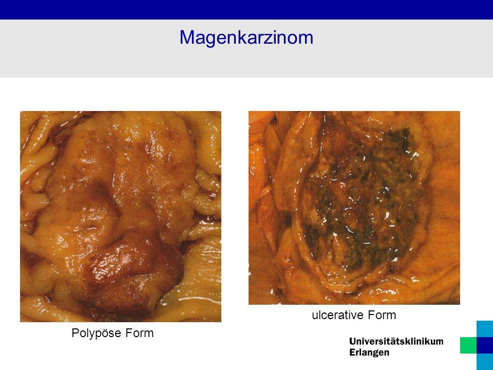 Polypöse Form Magenkarzinom ulcerative Form