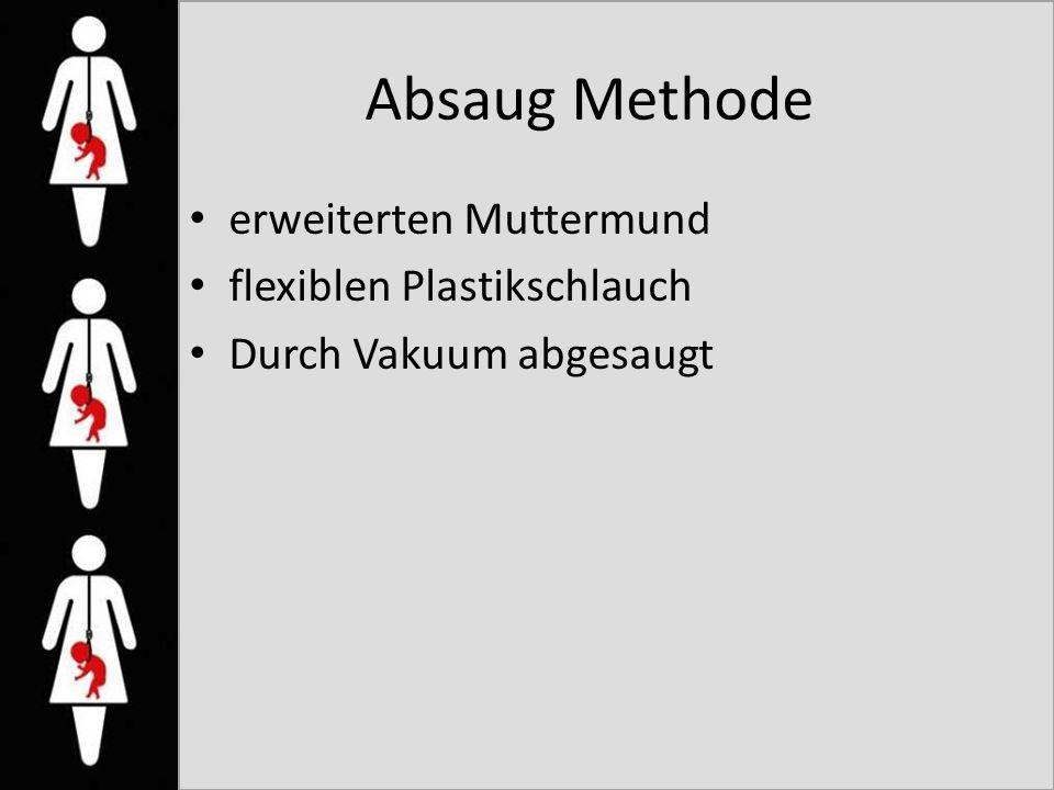 Absaug Methode erweiterten Muttermund flexiblen Plastikschlauch Durch Vakuum abgesaugt