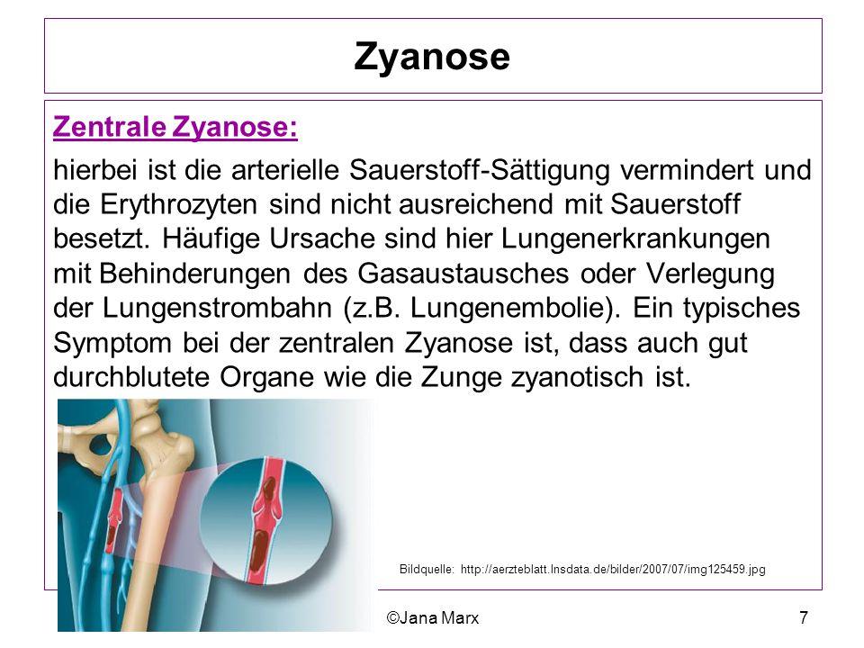 ©Jana Marx7 Zyanose Zentrale Zyanose: hierbei ist die arterielle Sauerstoff-Sättigung vermindert und die Erythrozyten sind nicht ausreichend mit Sauer