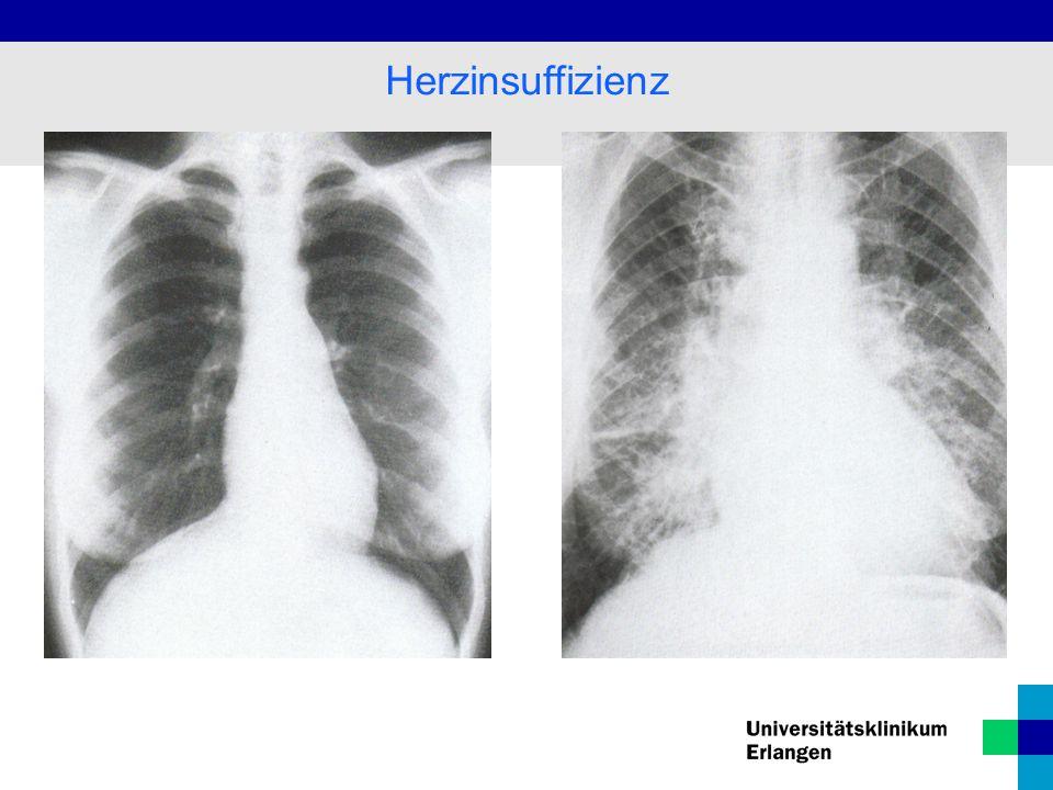 """Klinik: Leistungsminderung/Schwäche Dyspnoe  nächtliches """"Asthma cardiale , Schlaf mit erhöhtem Oberkörper Zyanose  vermehrte O2-Ausschöpfung in der Peripherie, blaue Hände/Füße Ödeme, v."""