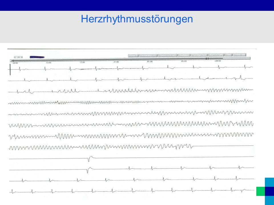 Diagnostik Anamnese (Synkopen, Angina pect., Herzstolpern) Puls, Pulsdefizit EKG Belastungs-EKG Labor (E`lyte, Herzenzyme, Medikamentenspiegel) Röntgenthorax (Lungenstauung, Herzgröße) Koronarangiographie Herzrhythmusstörungen