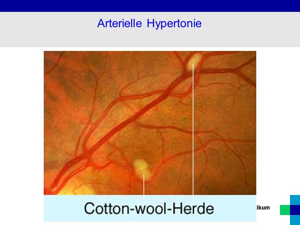 Gefäßdarstellung bei Nierenarterienstenose Arterielle Hypertonie