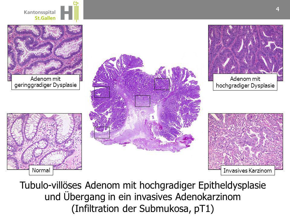 Maligner Polyp 5  0,2-8% der resezierten Adenome  Häufigkeit abhängig von der Polypgrösse  Villöses Adenom > tubuläres Adenom  pN+ in 0-20% der pT1 Karzinome Onkologische Resektion (regionäre LK) Polypektomie (Schlinge, EMR) ?