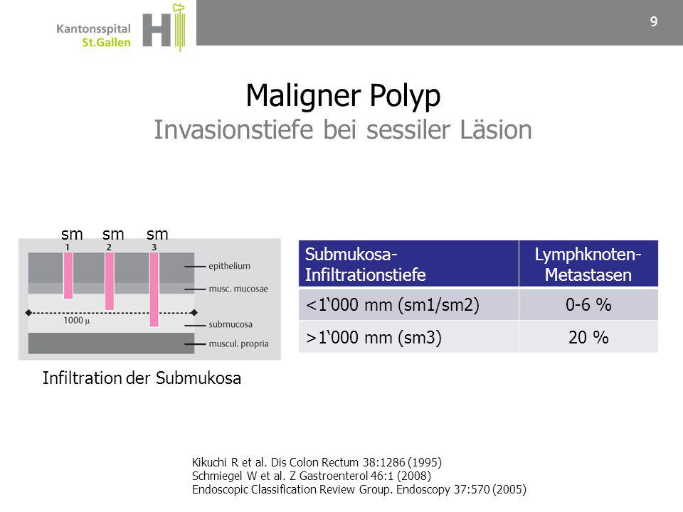 Tubuläres MuzinösesSiegelring-zelliges Maligner Polyp Histologischer Karzinomtyp 10 Adenokarzinom