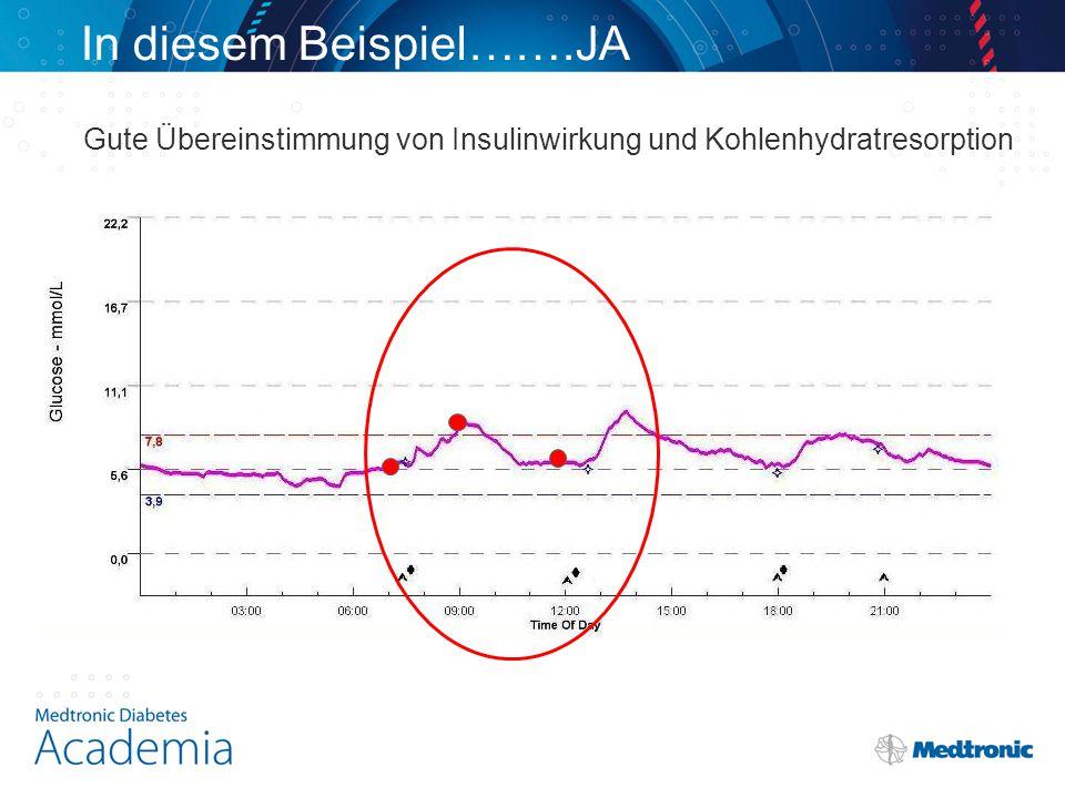 In diesem Beispiel…….JA Gute Übereinstimmung von Insulinwirkung und Kohlenhydratresorption