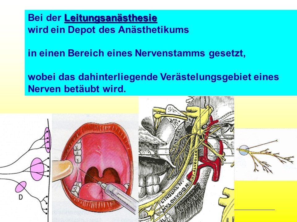 All Copyrights by P.-A. Oster ® Leitungsanästhesie Bei der Leitungsanästhesie wird ein Depot des Anästhetikums in einen Bereich eines Nervenstamms ges
