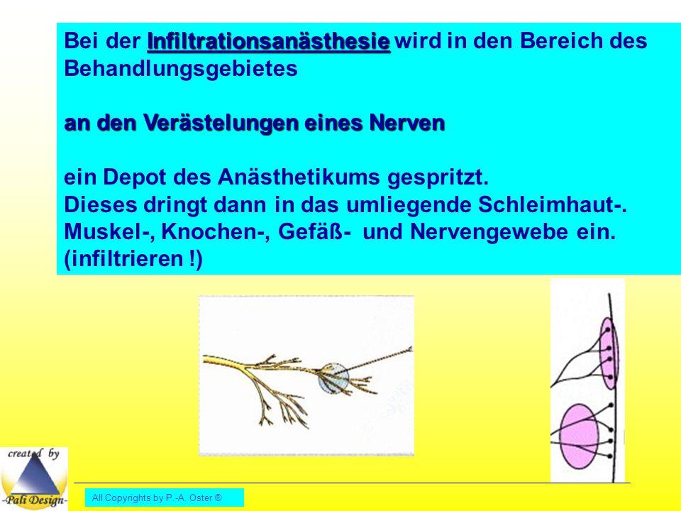 All Copyrights by P.-A. Oster ® Infiltrationsanästhesie Bei der Infiltrationsanästhesie wird in den Bereich des Behandlungsgebietes an den Verästelung