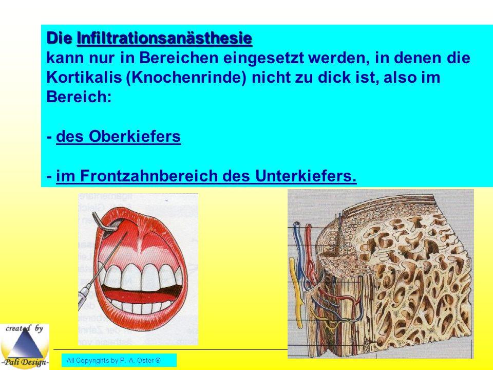 All Copyrights by P.-A. Oster ® Die Infiltrationsanästhesie kann nur in Bereichen eingesetzt werden, in denen die Kortikalis (Knochenrinde) nicht zu d